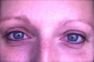 Augenmitlidstrich